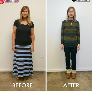 Before and after of woman showing weight loss