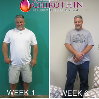 Before and after of man showing weight loss