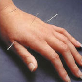 Acupuncture in West Lafayette is effective!