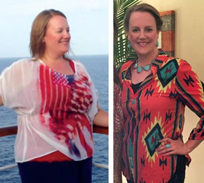 Before and After - Pam T.