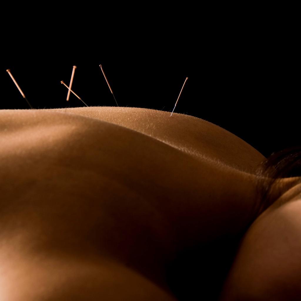 Certified Acupuncturist in {PJ}