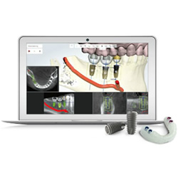 DIOnavi Digital Dental Implants