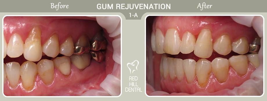 gum rejuvenation case 1a