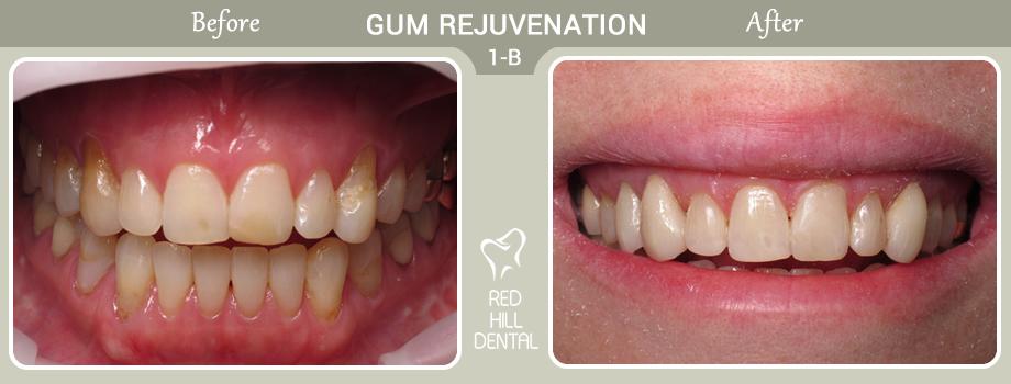 gum rejuvenation case 1b