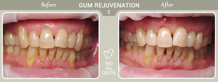 gum rejuvenation case 2