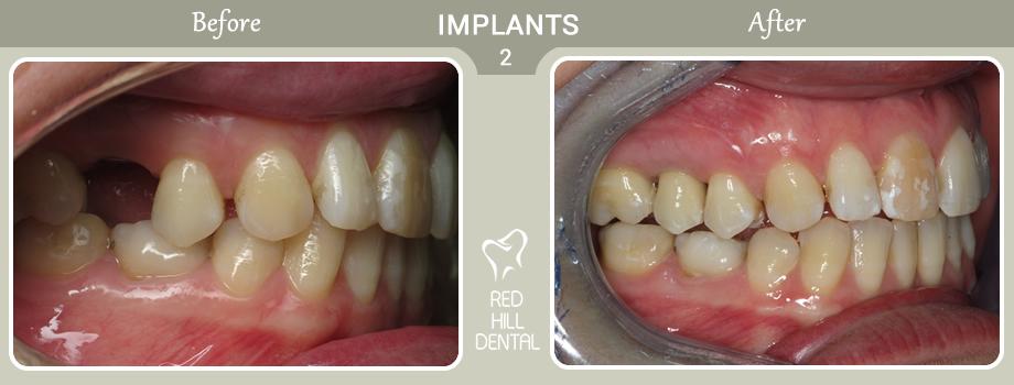 implants case 2