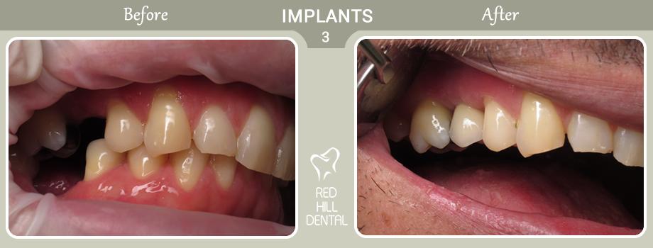 implants case 3