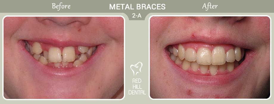 metal braces case 2a