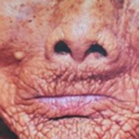 Old folk with bone resorption