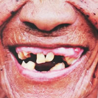 Old folk with gingivitis