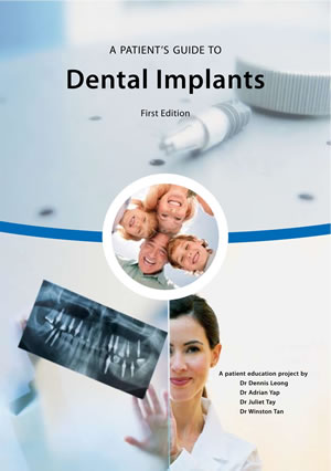 tn-A-Patients-Guide-to-Dental-Implants