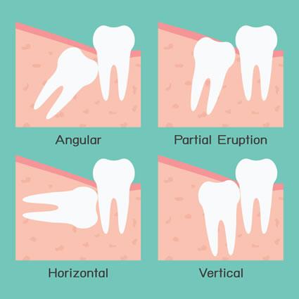 Types of impaction of wisdom teeth