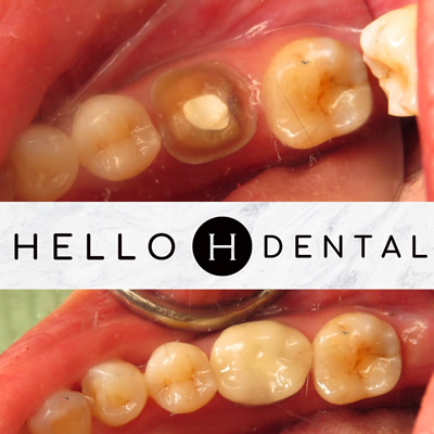 CEREC- Before and After