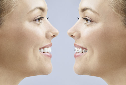 Invisalign Face-to-Face
