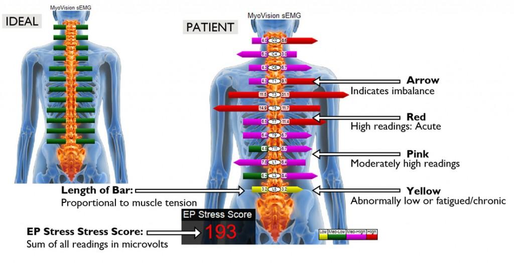 Ideal-Patient-Myovision