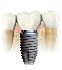 Dental Implant_1edps