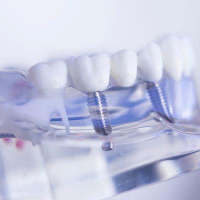 Implant Models