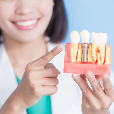 woman-with-teeth-model