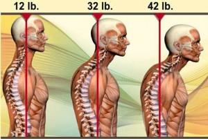 forward head positions
