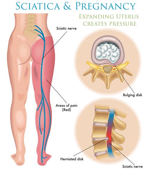 Diagram of sciatica