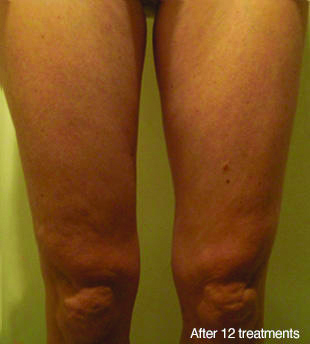 legs-after