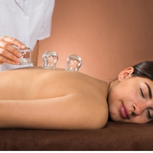 Therapist applying cups to patient's back