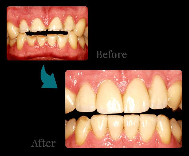 Cosmetic Composite Resin Bonding. Heavily Worn Teeth