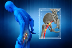 Pinched human sciatic nerve, anatomical vision. 3D Render.