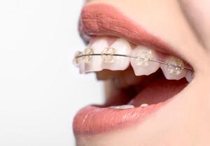 Woman wearing ceramic braces