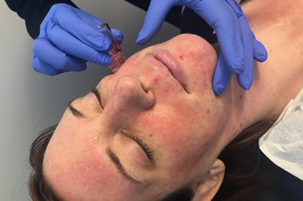 aquagold-treatment on female patient's face