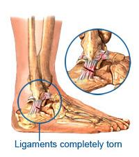 Illustration of ankle injury