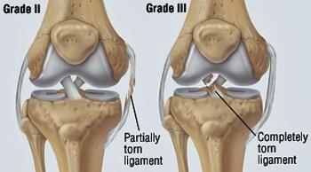 Illustration of knee damage