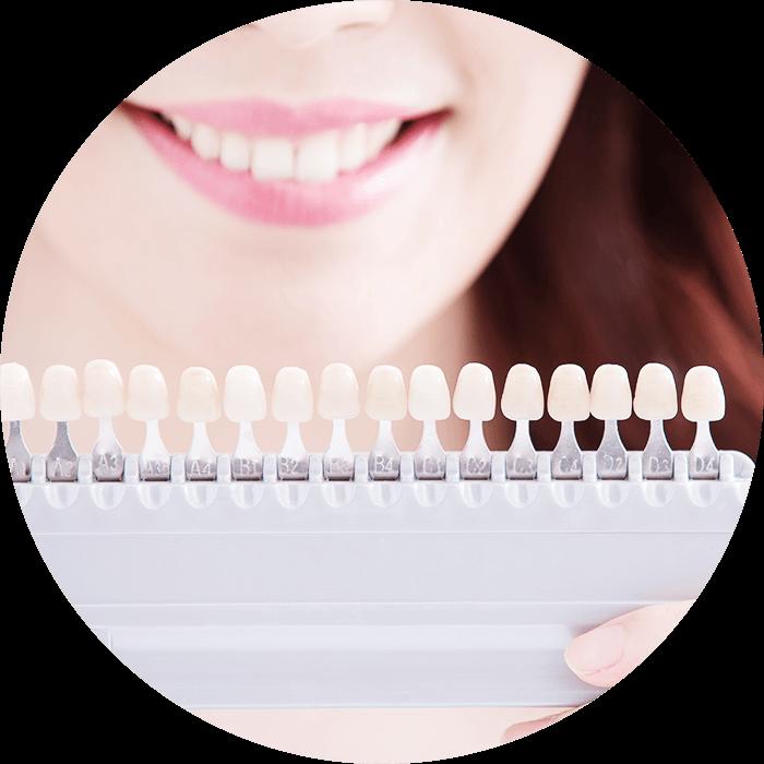 Sample of shades of Teeth Whitening