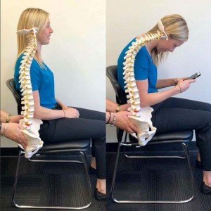 Headaches and Poor Posture