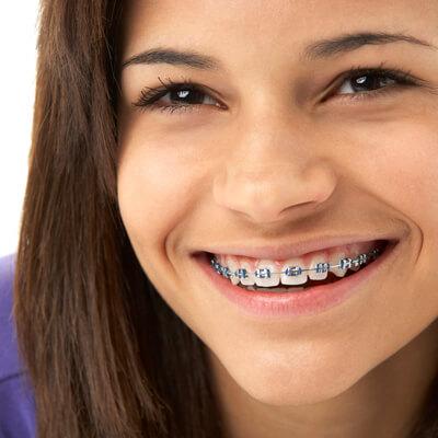 Teenage girl wearing traditional braces
