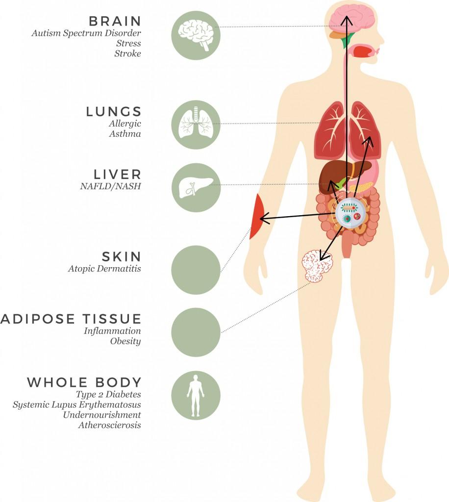 Gastronintestinal