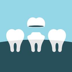 Illustration of dental crown