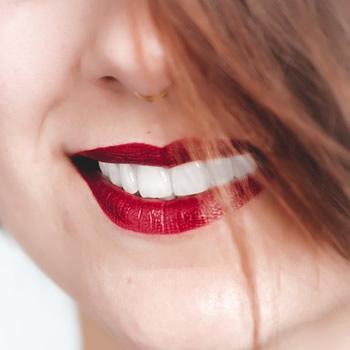 laser teeth whitening Artarmon