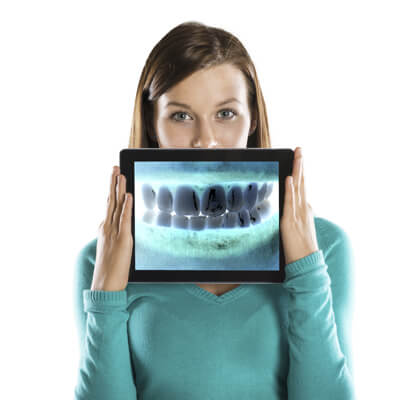 Woman holding dental xrays