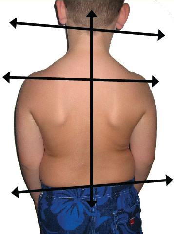 postural exam of a child