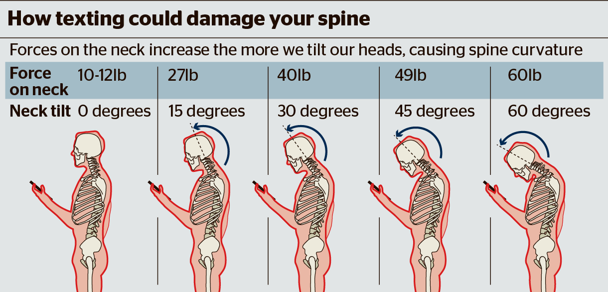 Graphic of how texting can damage spine.