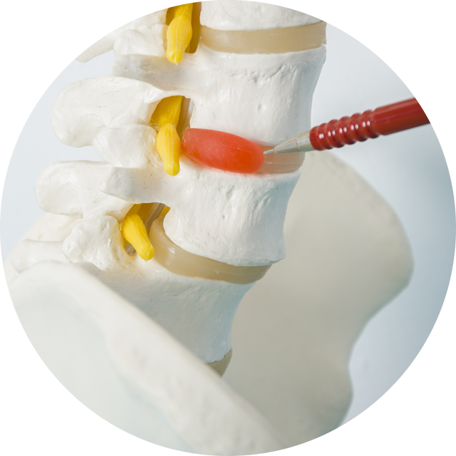 spine with bulging disk