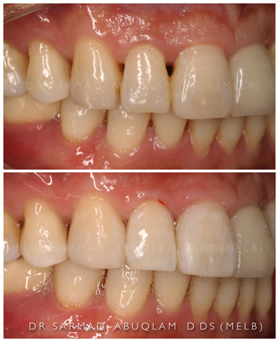 Bioclear Before and After-1