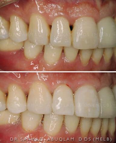 Comparison of bioclear on teeth