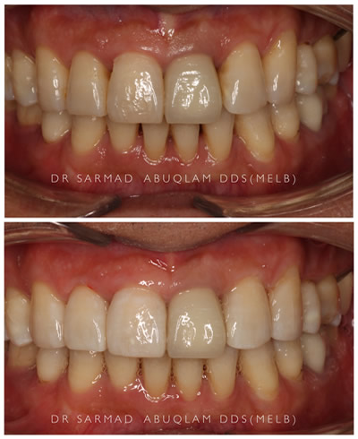 Bioclear Before and After-2
