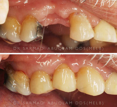 Before and After a bridge in teeth