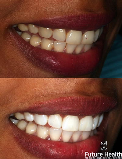 In office whitening before and after