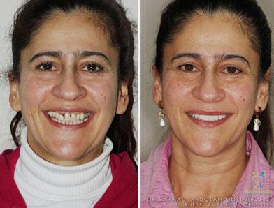 Beautiful implants on woman