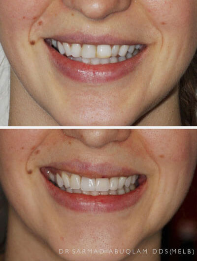 Before and after of veneers