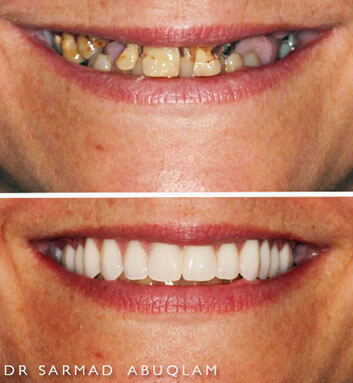 Before and After of a complete smile makeover